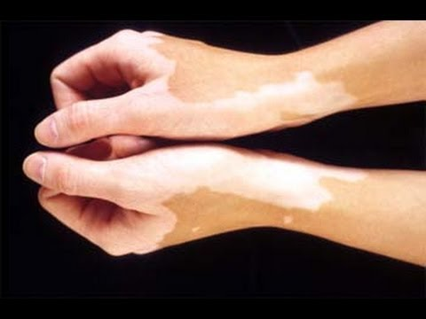 Dr. Rajesh Khandelwal, Astha Clinic discusses the reasons of White Spots or Vitiligo on skin